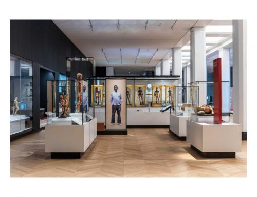 """""""Medicine: The Wellcome Galleries"""", al Museo della Scienza di Londra la più grande esposizione medica al mondo"""